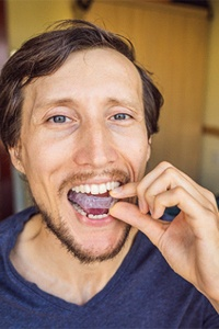 Man wearing nightguard to prevent teeth grinding and clenching