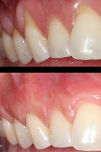 Closeup of smile before and after gum grafting