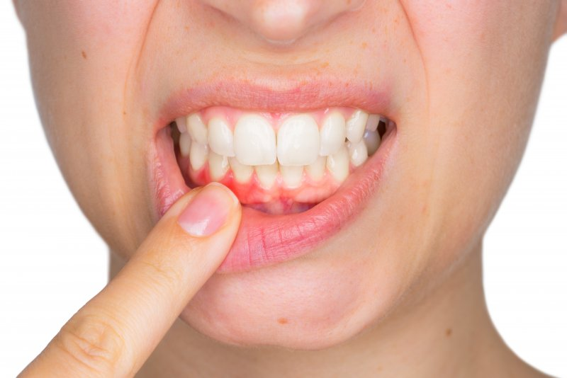 Woman in need of gum disease therapy